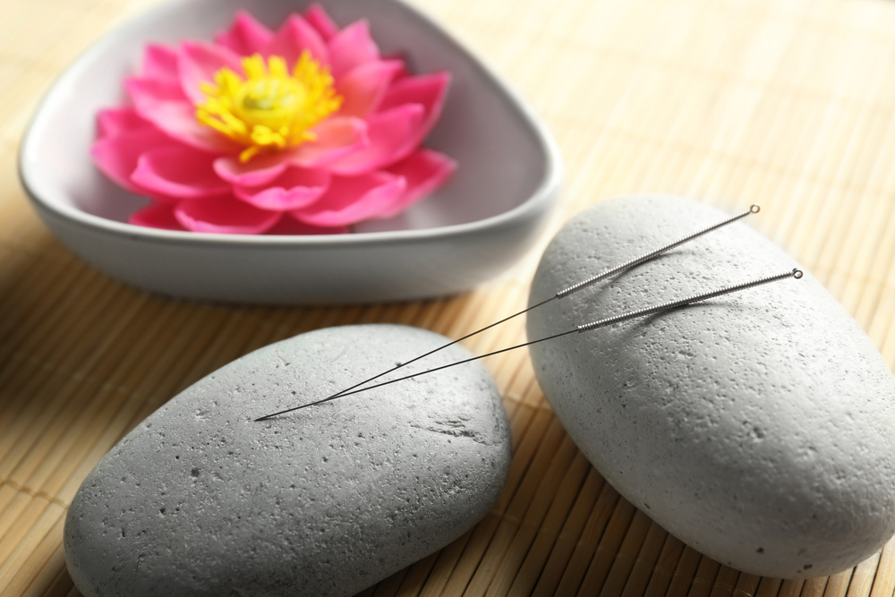 Acupuncture for pain relief.