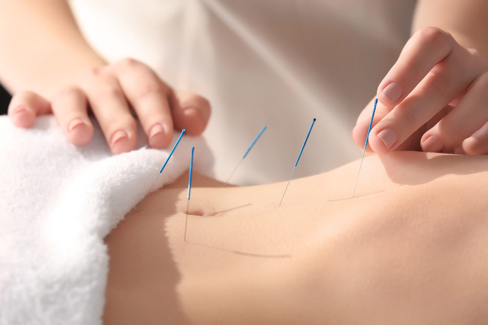 Acupuncture for indigestion